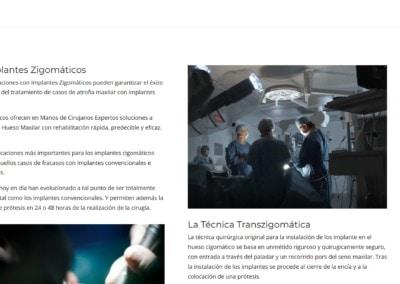 Tecnicas Implantes Zigomaticos Web Diseno